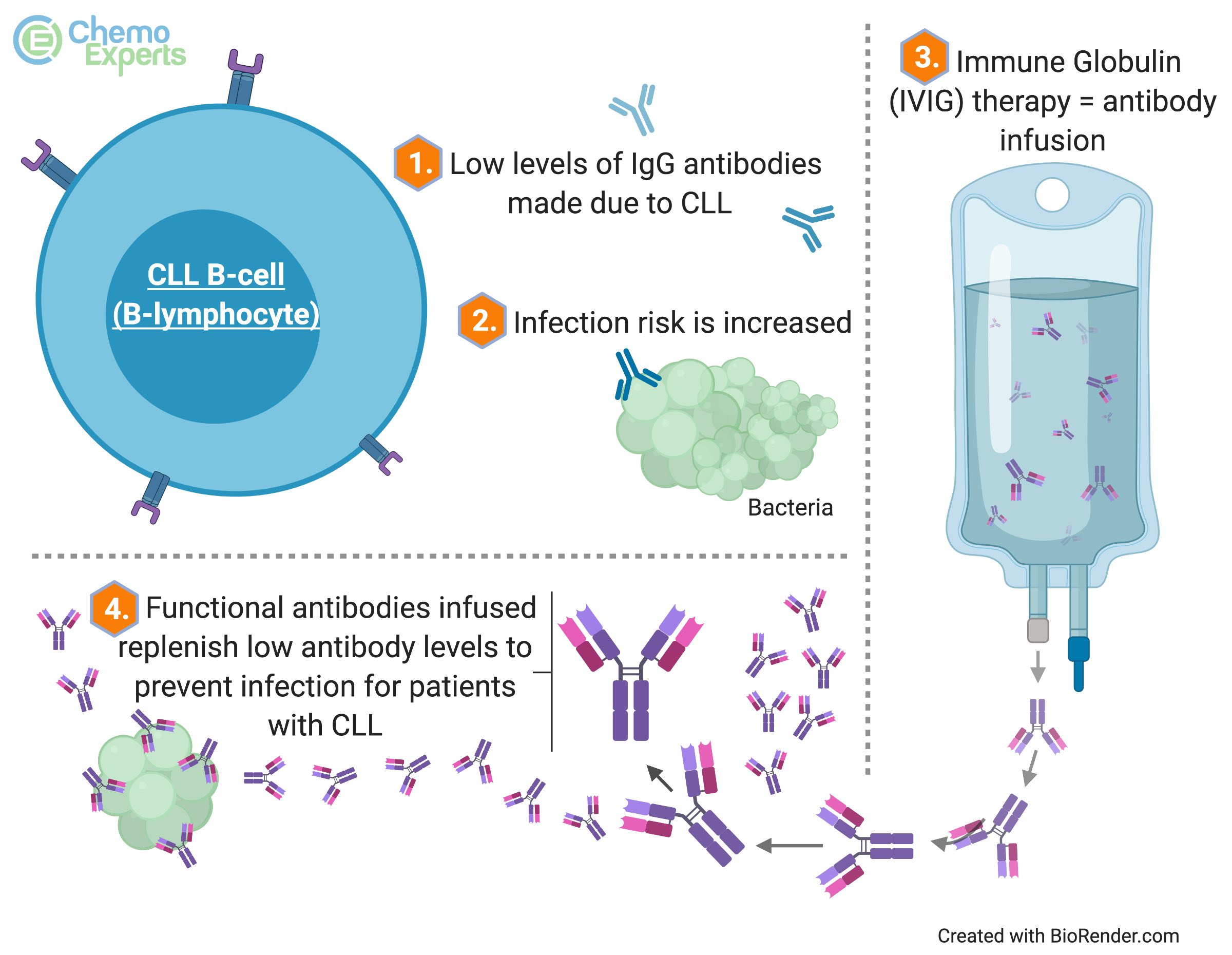 Image showing how IVIG may prevent severe infections in patients with CLL and hypogammaglobulinemia